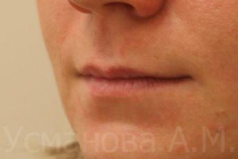 до увеличения губ, врач дерматокосметолог, к.м.н. Усманова Азиза