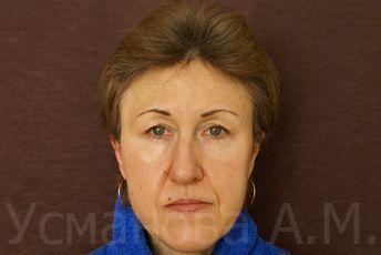 клиника лазерного удаления волос