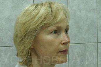 до лазерного омоложения лица, врач дерматокосметолог, к.м.н. Усманова Азиза