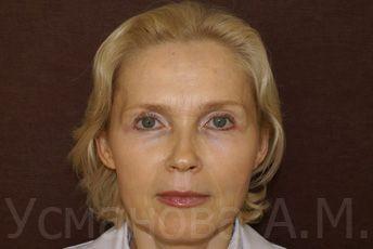 После лазерного омоложения лица врач