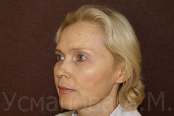 после лазерного омоложения лица, врач дерматокосметолог, к.м.н. Усманова Азиза