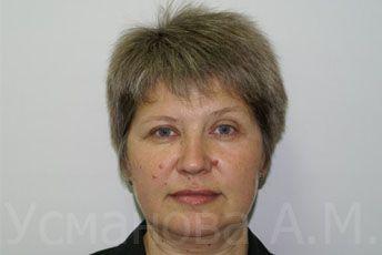 до удаления родинок на лице и шее, врач дерматокосметолог, к.м.н. Усманова Азиза