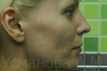 до удаления рубцов постакне, врач дерматокосметолог, к.м.н. Усманова Азиза