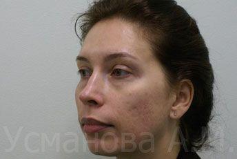 после удаления рубцов постакне, врач дерматокосметолог, к.м.н. Усманова Азиза