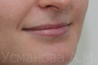 до увеличения верхней губы, врач дерматокосметолог, к.м.н. Усманова Азиза
