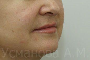 после увеличения губ, врач дерматокосметолог, к.м.н. Усманова Азиза