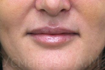 после увеличения верхней губы, врач дерматокосметолог, к.м.н. Усманова Азиза