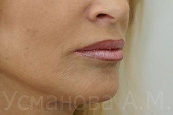 Фото до и после увеличения губ