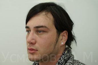 до увеличения скул, врач дерматокосметолог, к.м.н. Усманова Азиза