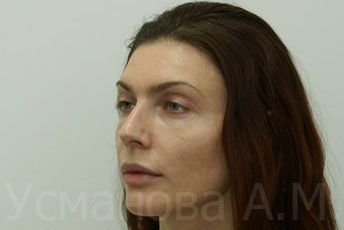 после увеличения скул, врач дерматокосметолог, к.м.н. Усманова Азиза